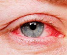 خون گرفتگی چشم