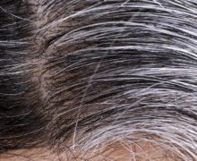 سفید شدن مو