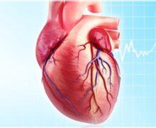 دکتر قلب و عروق پیروزی