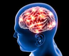 دکتر مغز و اعصاب بهشتی